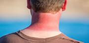 درمان سریع آفتاب سوختگی با ۱۰ روش موثر