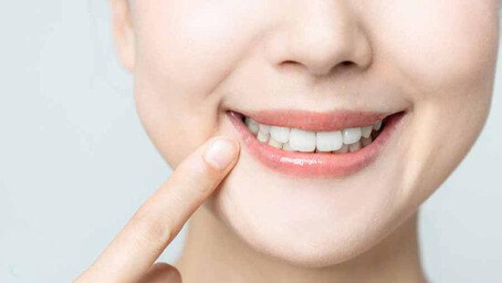 سفید کردن دندان با وایتکس واقعیت دارد؟