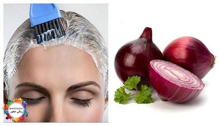 درمان طبیعی و سریع ریزش مو با پیاز