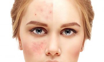 مشکلات داشتن پوست چرب؛ راه های از بین بردن چربی پوست