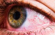 دلایل قرمز شدن چشمها؛ از دیابت تا بیماری های خونی