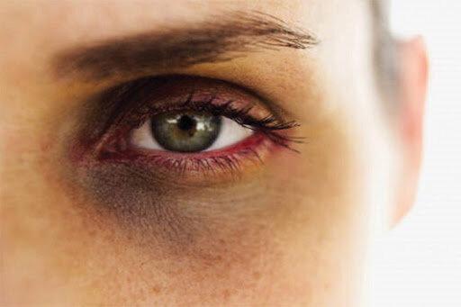 علت سیاهی و گودی زیر چشم