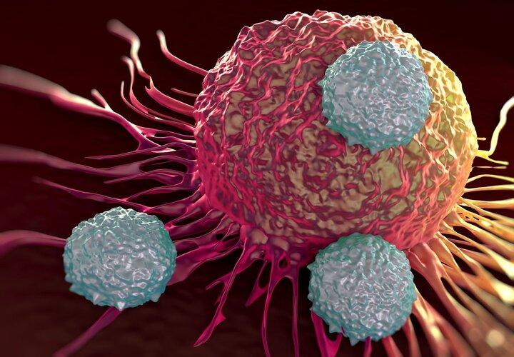 شایع ترین سرطان ها در ایران را بشناسید