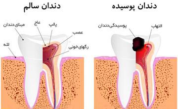 علت پوسیدگی دندان چیست؟ / ده عامل خرابی دندان