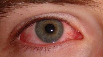 کرونا چگونه از طریق چشمها ما را آلوده می کند؟