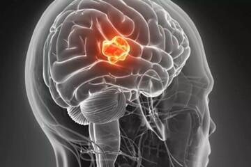 علائم تومور مغزی کدام است؟ | تومور مغزی را بهتر بشناسید