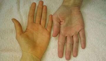 دلیلی زرد شدن رنگ پوست چیست؟