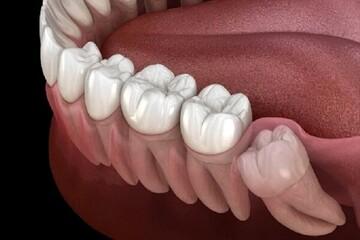 دلیل وجود دندان عقل و کار آن در دهان چیست؟  / جزئیات