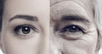 ۹ نشانه پیری زودرس را بشناسید