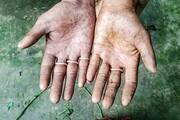 ماجرای خانوادهای که اثر انگشت ندارد/ عکس