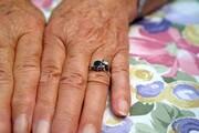 کدام بخشهای بدن زودتر پیر میشوند؟