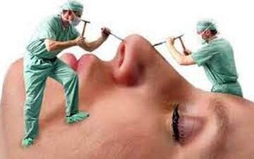 حداقل سن مناسب جراحی بینی برای دختران و پسران