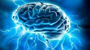 تاثیرات فراوان کم خوابی بر مغز