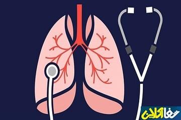 تغذیه مفید و مضر برای ریه ها در ایام کرونا