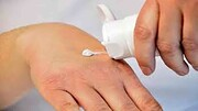 درمان خشکی دست در زمستان