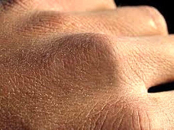 چند روش خانگی برای رفع خشکی پوست دست