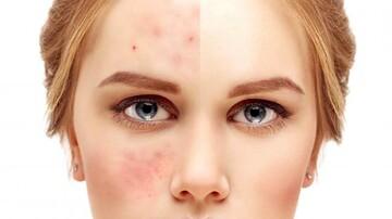 پاکسازی پوست چرب و دارای جوش برای جلوگیری از پیری