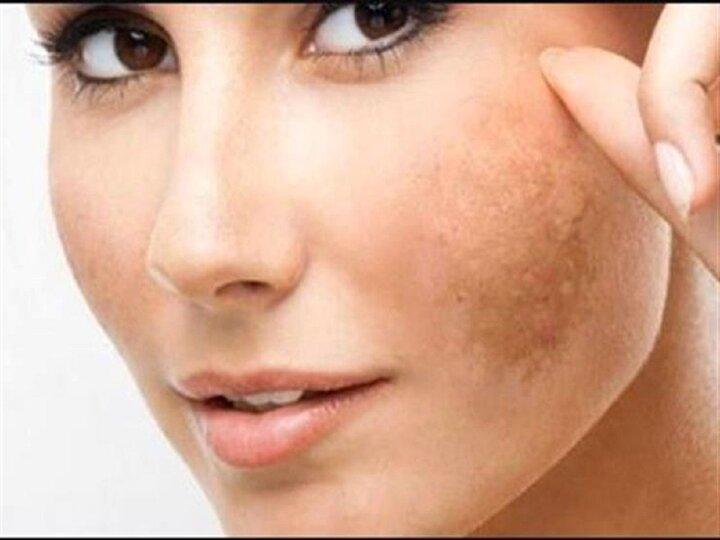 از بین بردن لکه های پوستی با چند روش ساده در منزل