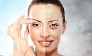 دلیل ترک خوردگی پوست چیست؟ + نحوه درمان
