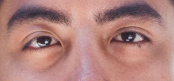 چه عواملی باعث تیرگی زیر چشم می شوند؟   درمان تیرگی زیر چشم با چند روش ساده خانگی