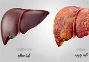 علائم ابتلا به بیماری گرمی کبد و نحوه درمان آن
