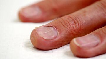 علائم کمبود روی در ناخن ها | دیستروفی ناخن چیست؟