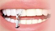 سفید کردن دندانها با چند روش ساده و کم هزینه در منزل