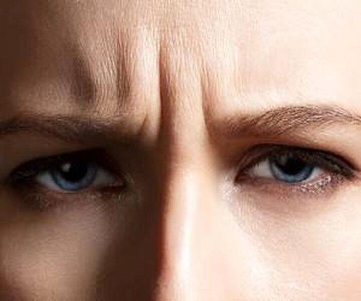 دلیل ایجاد خط اخم بر روی صورت چیست؟ | نحوه صاف کردن خط اخم با چند روش ساده و طبیعی