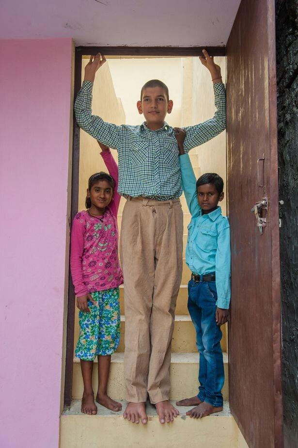 کودک ۵ ساله با ۱.۷۰ متری قد / تصاویر
