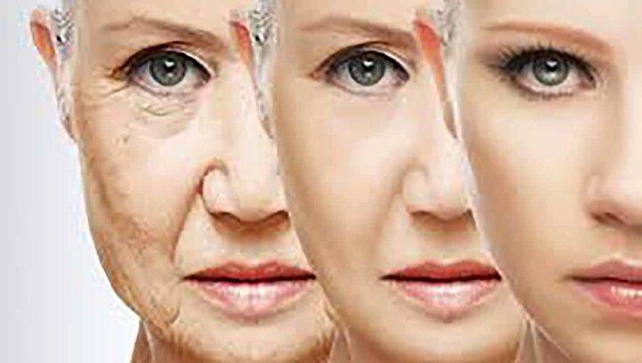 علت اصلی پیری زود هنگام پوست چیست؟ + پیشگیری و نحوه درمان