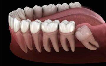 نکشیدن دندان عقل چه بلایی سر دیگر دندانها میآورد؟