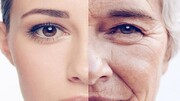 آیا استفاده زود هنگام از داروهای ضدپیری بر روی پوست تاثیر دارد؟ | چه زمانی باید از کرم ضدآفتاب استفاده کنیم؟