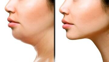 لاغری طبیعی صورت و از بین بردن غبغب با چند روش ساده در منزل