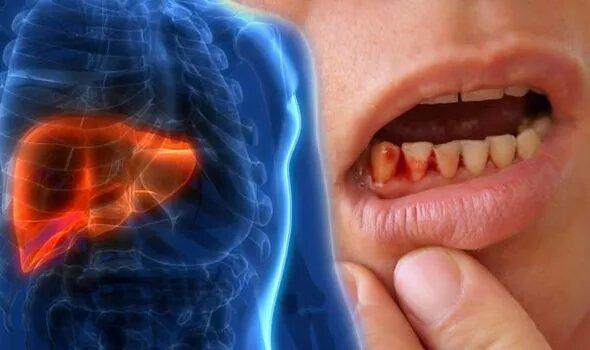 ارتباط خونریزی لثه با ابتلا به بیماری کبد چرب
