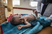 حملات و جنایات عربستان با یمن چه کرد؟ / فیلم