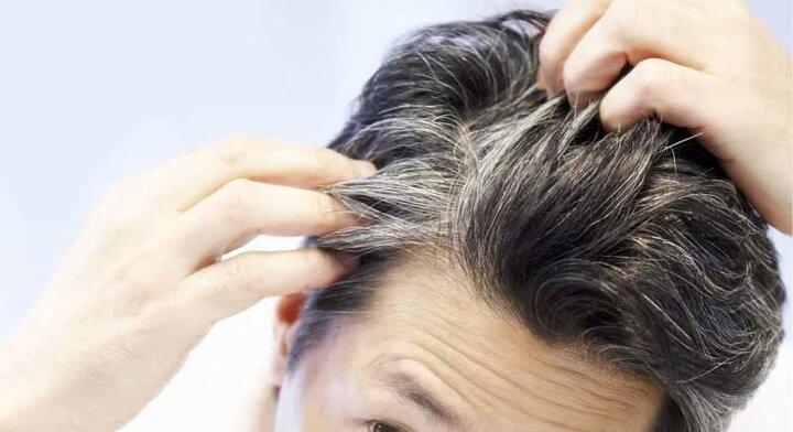 علت سفیدی مو در جوانی چیست؟ | نحوه پیشگیری از سفیدی زودرس موها