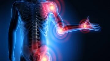 علائم اصلی ابتلا به آرتروز چیست؟ | چه افراد مستعد ابتلا به آرتروز هستند؟