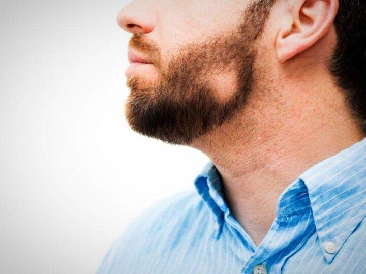 آشنایی با بیماریهای رایج درباره ریش مردان