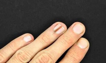 نحوه تشخیص و درمان بیماری ملانونیچیا | دلیل بروز خطوط تیره روی ناخن چیست؟