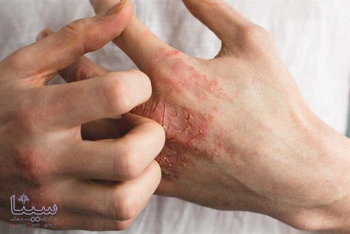 برای پیشگیری و کنترل ضایعات اگزما چه کار باید کرد؟ | باورهای غلط و نحوه درمان اگزما