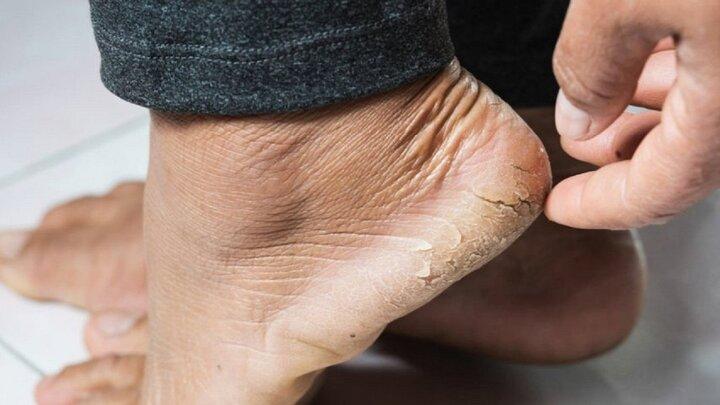 درمان فوری ترکخوردگی پاشنه پا به روشی ساده