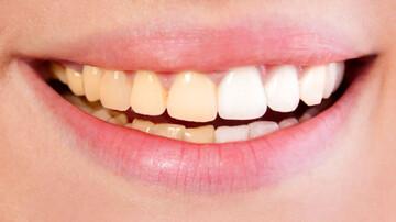 علت زرد شدن و تغییر رنگ دندان چیست؟