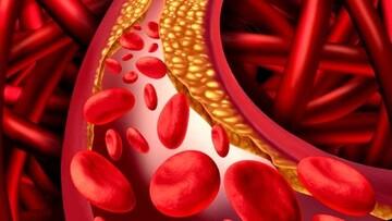 علائم و عوارض کلسترول بالا چیست؟ + نحوه پیشگیری و درمان