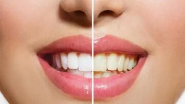 بهترین روشهای تمیز کردن دهان و دندان که از آن بیاطلاعید
