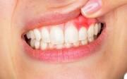 علائم عفونت دهان چیست؟