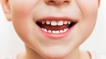 تاثیرات بدی که پوسیدگی دندانهای شیری بر روی فک و صورت میگذارد