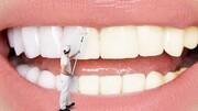 علت زردی دندان چیست؟ | سفیدکردن دندانها با چند روش ساده و طبیعی