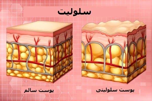 علت ایجاد سلولیت و راههای درمان آن در خانه