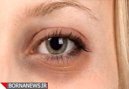 روشهای طبیعی رفع تیرگی دور چشم