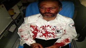 حمله خونین مصدوم به تکنسین اورژانس در تهران! / عکس